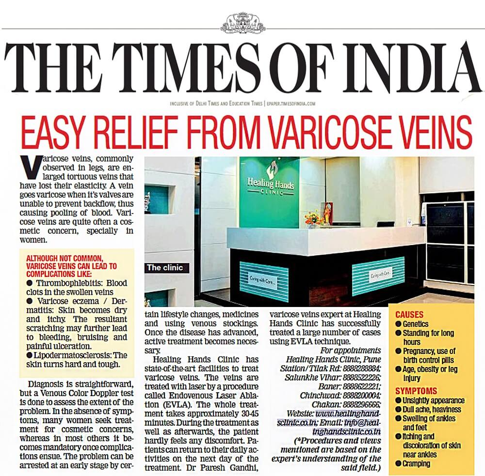 EASY RELIEF FROM VARICOSE VEINS