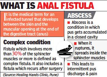 What is anal fistula