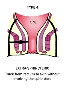 Fistula type 4