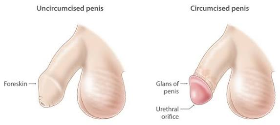 Circumcision,Phimosis & Paraphimosis Treatment,foreskin,prepuce, intercource problems.