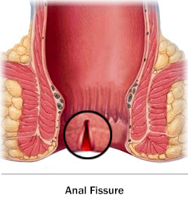 Anal Fissure Won T Heal