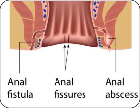Fistula doctor