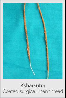 Ksharsutra surgery for fistula