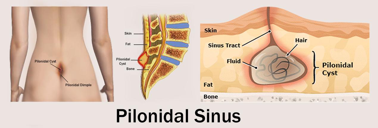 pilonidal sinus symptoms, treatment