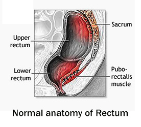 Symptoms and causes of Rectal Prolapse