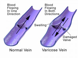 what is variocse veins? causes and treatment of varicose veins